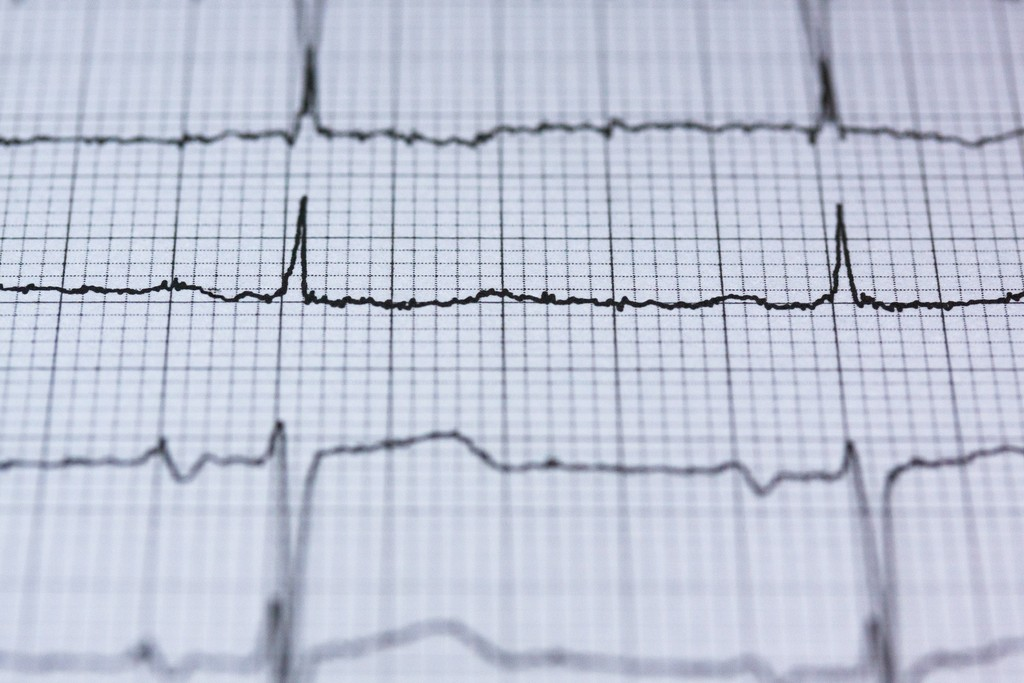 An EU heart health plan to tackle Europe's number one killer
